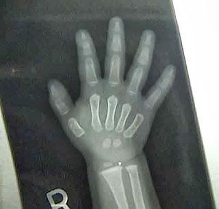 normalbabyhandx-ray